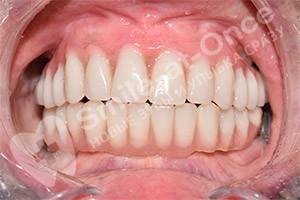 Проведение имплантации на обеих челюстях