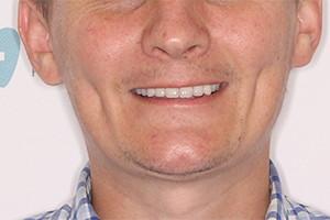 Одномоментная имплантация фото до и после