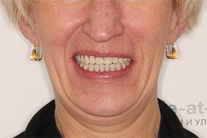 Комплексное восстановление зубов на 2 челюстях
