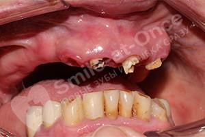 Восстановление разрушенных зубов базальными имплантами