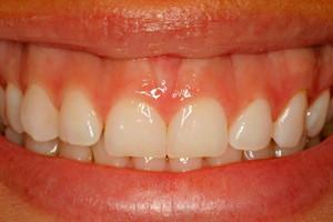 Новая улыбка без имплантации зубов, фото до