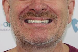 Базальные импланты верхней и All-on-6 нижней челюсти