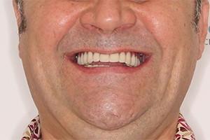 Отсутствие зубов на обеих челюстях