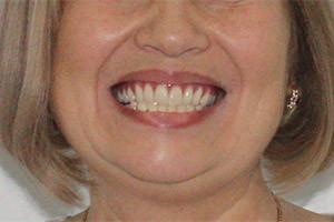 Базальные импланты верхней челюсти