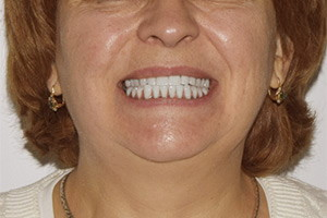 Замена разрушенных зубов Basal Complex