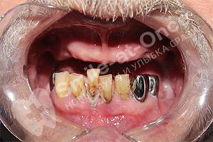 Восстаовление зубов верхней челюсти - однофазная имплантация