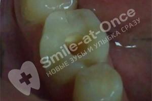 Установка зубной пломбы