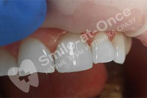 Скол на переднем зубе
