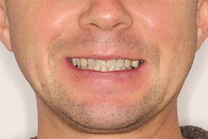 Верхняя челюсть - имплантация Basal Complex