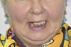 Базальная имплантация и съемные протезы фото ДО