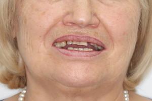 Все-на-4 с адаптационном протезом для верхней и нижней челюстей, фото до