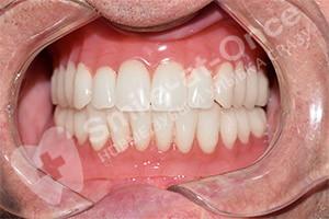 Имплантация при отсутствии зубов на обеих челюстях