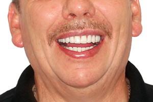 Basal Complex и съемный протез для новой улыбки - до