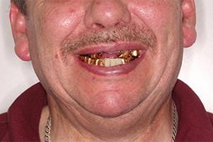 Имплантация после ношения зубных коронок