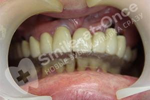 Базальная имплантация 2-х челюстей
