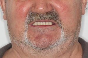 Протезирование All-on-4 от Nobel на обе челюсти - до