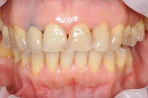 Профессиональная гигиена и лечение кариеса, фото до