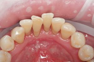 Комплексная гигиена полости рта, фото до