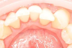 Комплексная чистка зубов, фото до