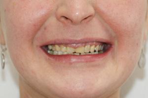 Решение проблемы десневой улыбки верхней челюсти, фото до