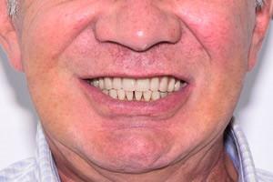 All-on-4 для верхней челюсти и единичная имплантация - до