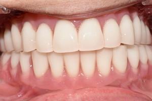 Базальная имплантация для восстановления зубов на верхней и нижней челюсти