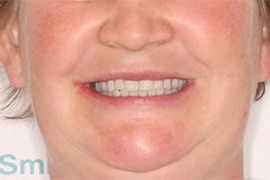 Восстановление разрушенных зубов 2х челюстей