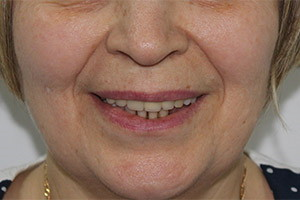 Концевой дефект нижней челюсти