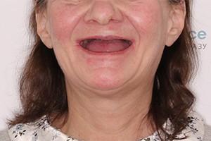 Полное отсутствие зубов двух челюстей