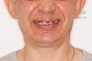 Имплантация двух челюстей - однофазная