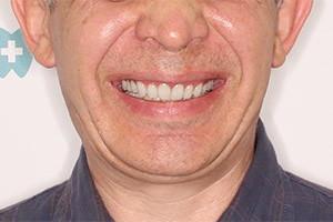 Однофазная имплантация на обеих челюстях