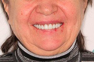 Разрушенные зубы верхней челюсти