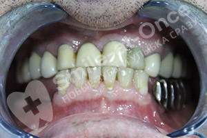 Имплантация и протезирование жевательных зубов