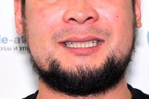 Протезирование All-on-4 на верхней челюсти и единичные восстановления на нижней, фото до
