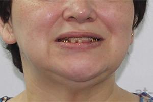 Восстановление зубов нижней челюсти