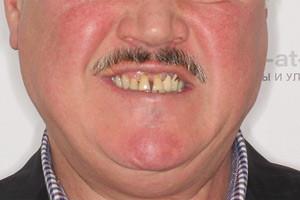 Восстановление верхней челюсти протоколом All-on-Six