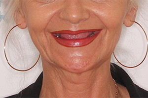 Восстановление зубов на двух челюстях