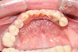 Имплантация отсутствующих жевательных зубов