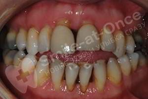 Имплантация All-ON-4 (все на четырех) на верхней челюсти