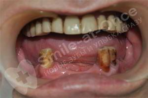 Имплантация и протезирование на нижней челюсти