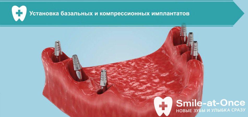 Видео о лучших методах имплантации при атрофии кости