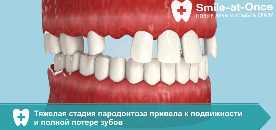 Видео об особенностях протезирования All-on-6 на верхней челюсти