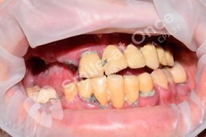 Восстановление зубов на обеих челюстях