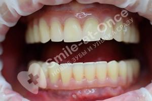 Базальная имплантация всех зубов