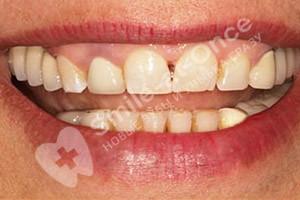 Классическая имплантация жевательных зубов