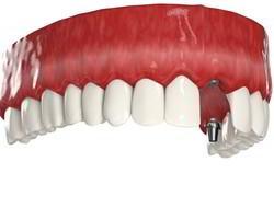 Потеря переднего зуба