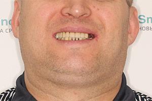 Восстановление верхней челюсти базальными имплантами фото ДО