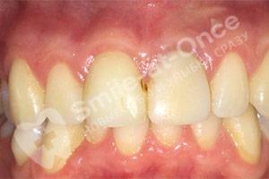 Нарушение положения зубов