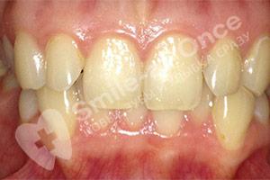 Изменение размера нижней челюсти и дистопия зубов
