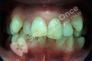 Исправление скученности зубов